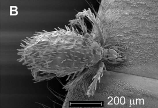 Leptus killingtoni en microscopie électronique issu du travail scientifique cité en -1-